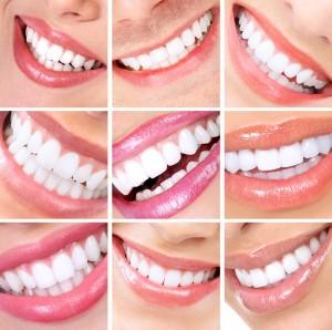 foto dental design
