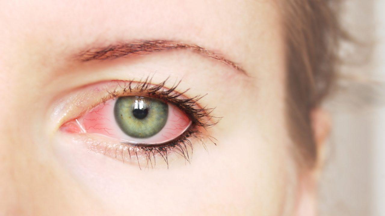roșeață a ochilor vederii