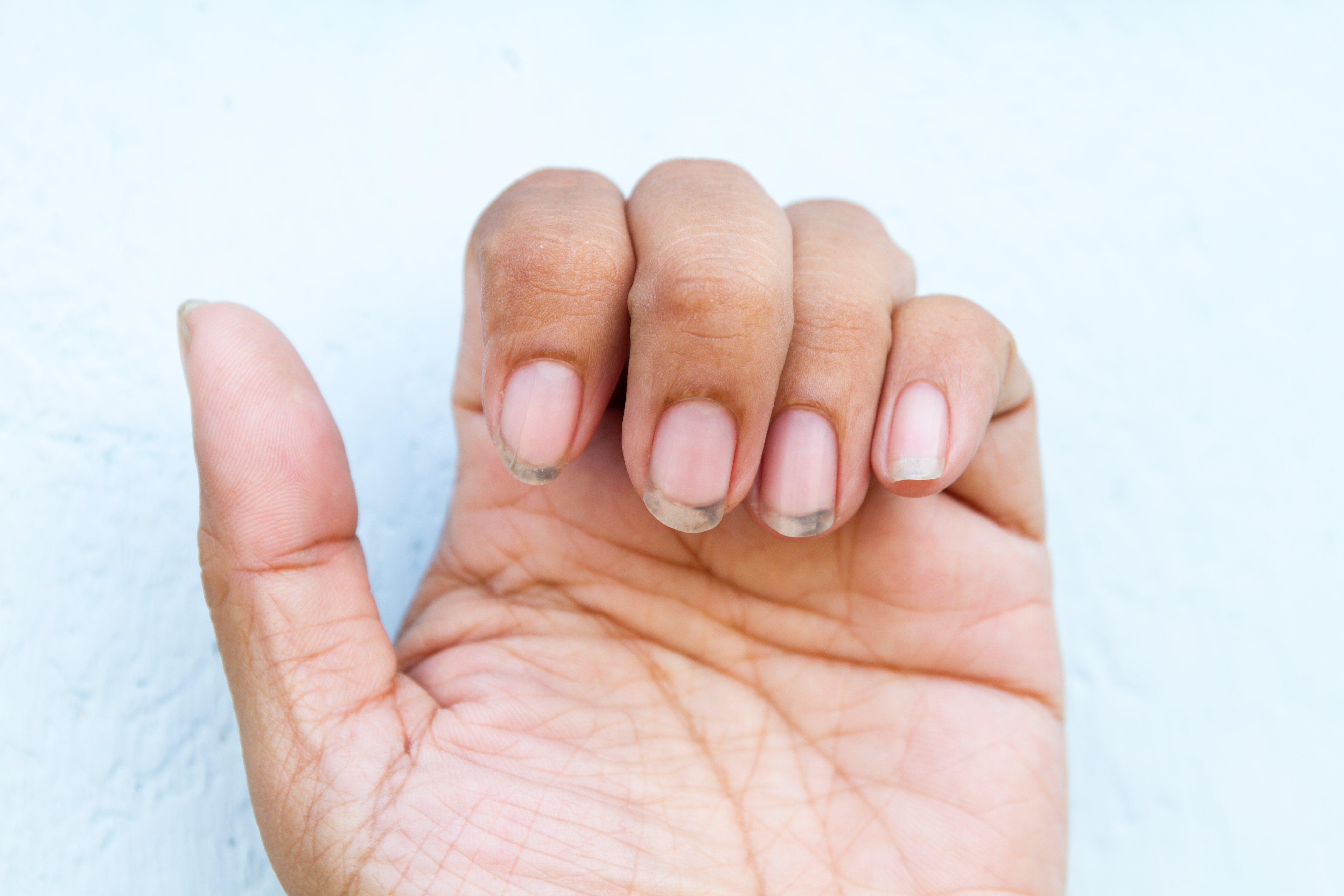 tratament pentru poliartrita reumatoida plan