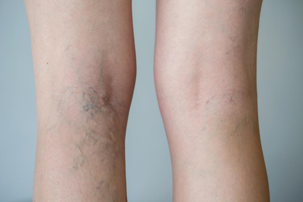 Dopo diretto i danni di gamba di vena