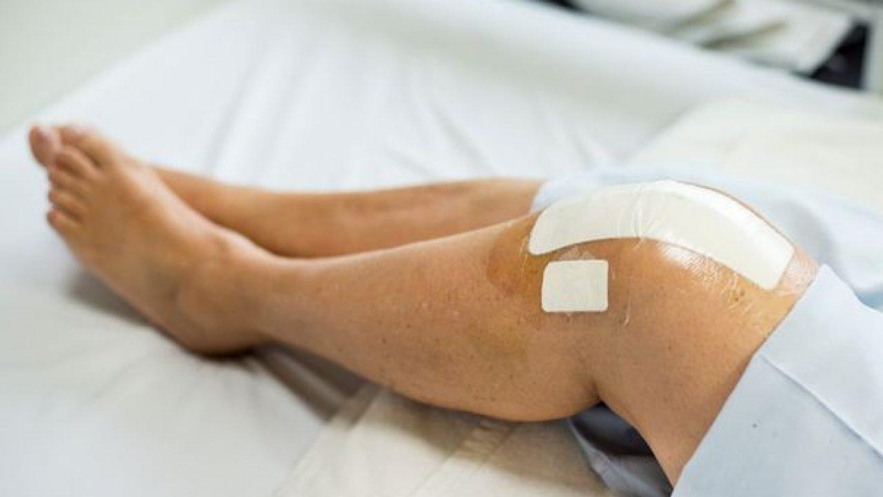 Bursita de rotulă, una dintre cele mai frecvente cauze ale durerilor de genunchi