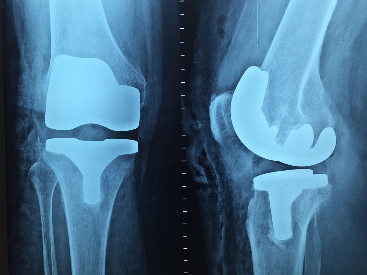 artrita septica a tratamentului articulatiei genunchiului