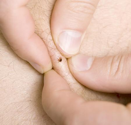 Strânge pielea cu putere în jurul insectei și apoi încearcă să o scoți folosind o pensetă fină