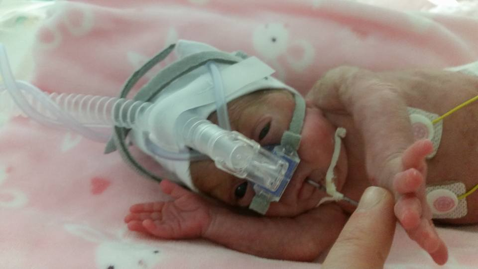 Bebe Meabh a trecut prin două operații