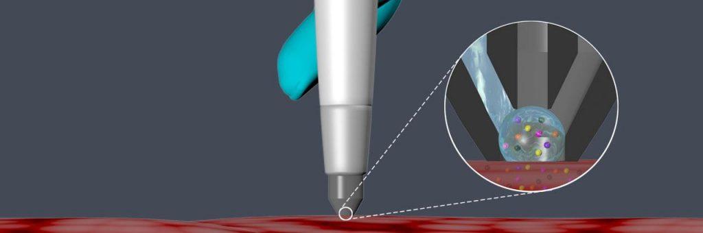 sonda cât un stilou detecteaasă cancerul
