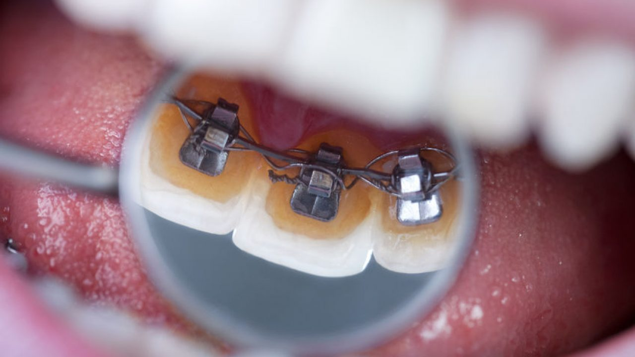 Aparat de contentie - Accesoriul perfect post tratament ortodontic