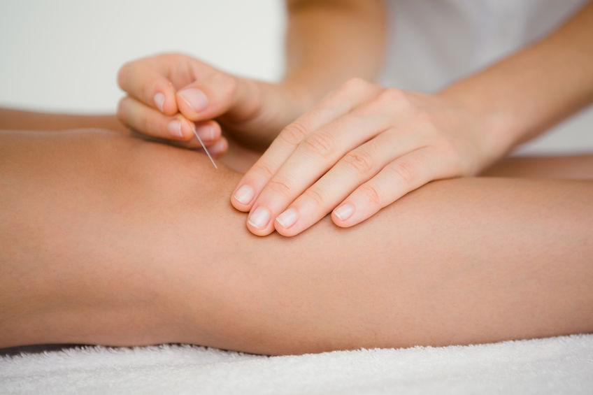 tratamentul acupuncturii artrozei)