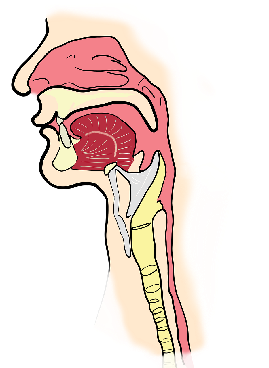 cancer laringian stadii
