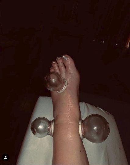 a fost nevoita sa recurga la ventuze pentru a-si trata picioarele