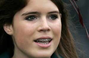 printesa Eugenie a purtat si ea aparat dentar
